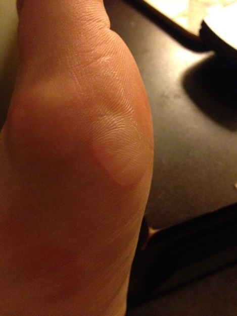 9 Fun with Blisters